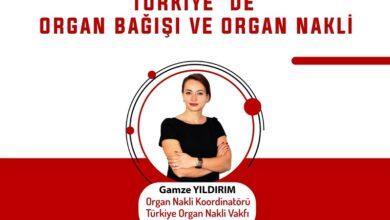 organ-bagisi